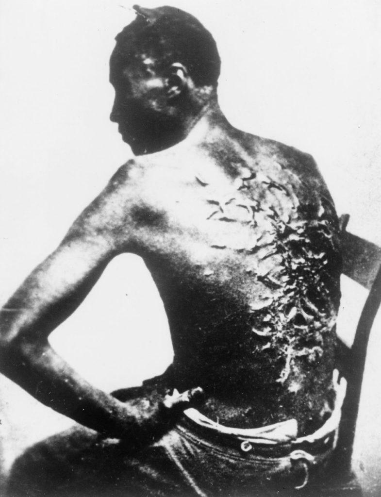 Tidligere slave med horrible arr på ryggen